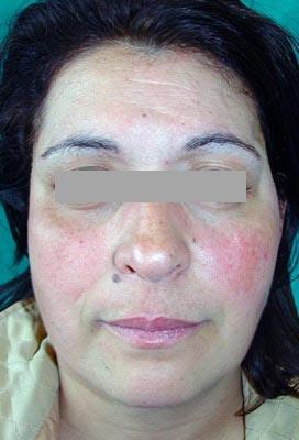malformazione maxillo facciale