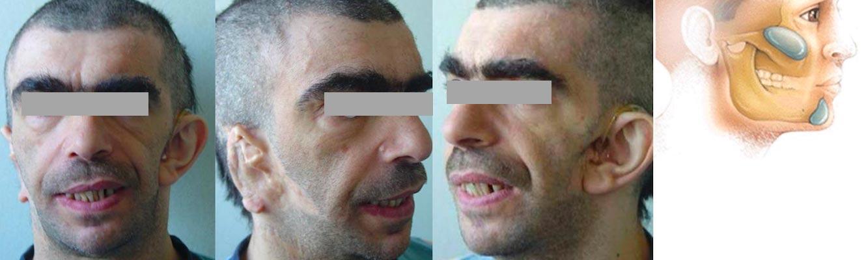 epitesi auricolare e protesi zigomatiche mentoniere e angolo mandibolare